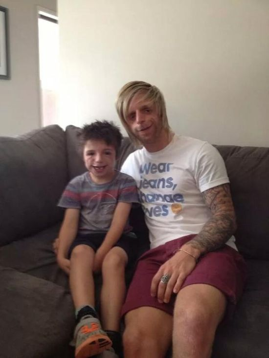 Man Flies From Yorkshire To Australia To Meet Someone With His Disorder (25 pics)