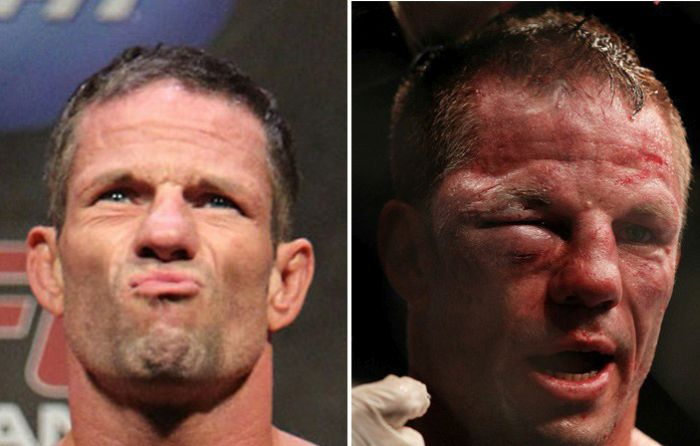 UFC Fighters Before And After A Fight (15 pics)