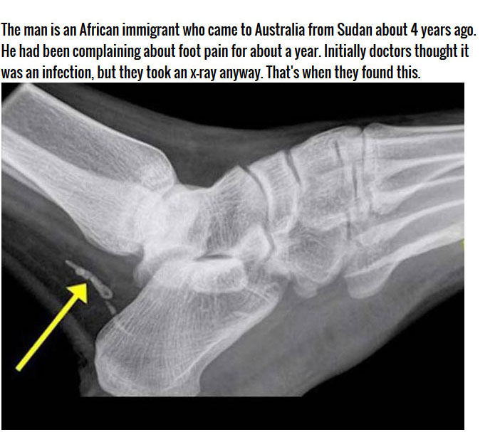 Man Thought He Had An Infected Foot But It Was Much Worse (4 pics)
