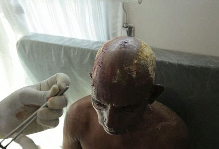 Smashing Coconuts On A Human Head (7 pics)