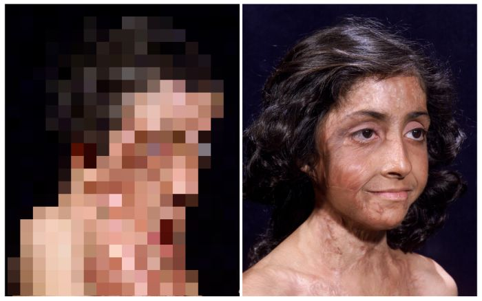 Burn Victim Gets Amazing Facial Reconstruction (4 pics)