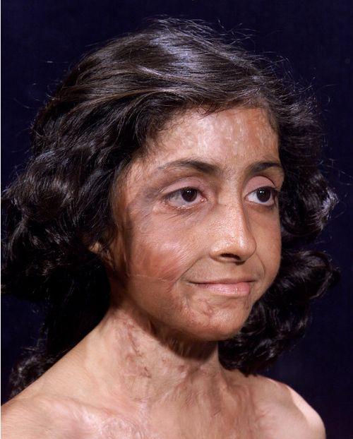 Burn Victim Gets Amazing Facial Reconstruction (4 pics)