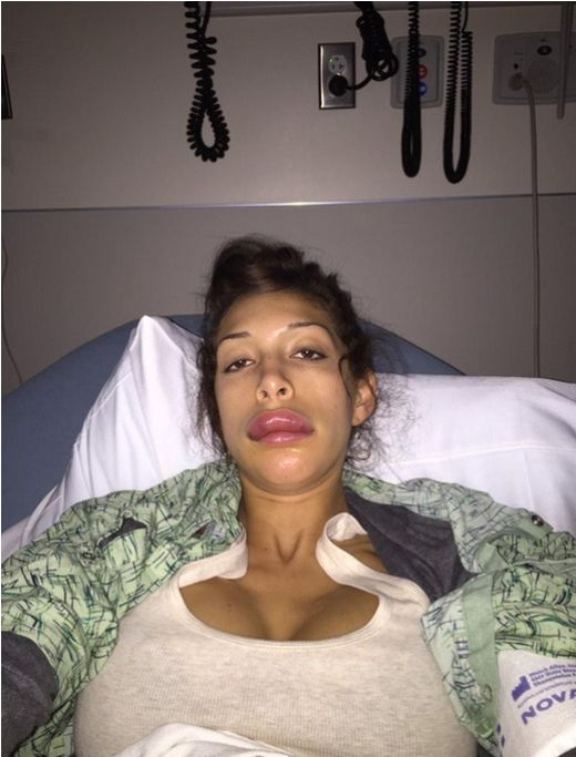 Farrah Abraham's Lip Implant Surgery Went Horribly Wrong (8 pics)