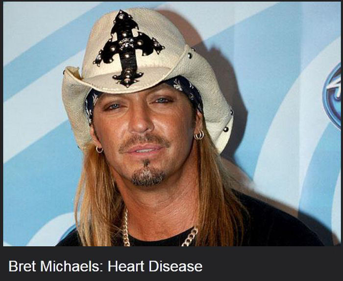 Famous Celebrities That Have Diseases (17 pics)