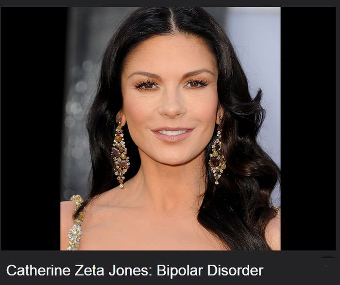 Famous Celebrities That Have Diseases (17 pics)