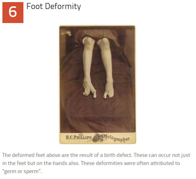 10 Disturbing Medical Images Throughout History (10 pics)