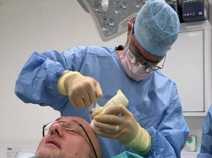 Inilah Rupanya Jika Pembedahan Menanam Akar Rambut Tidak Berjaya