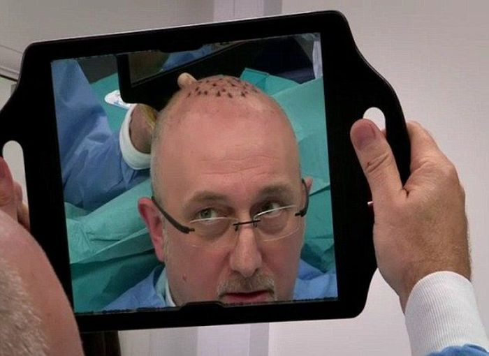 When Hair Transplant Surgery Goes Wrong (5 pics)