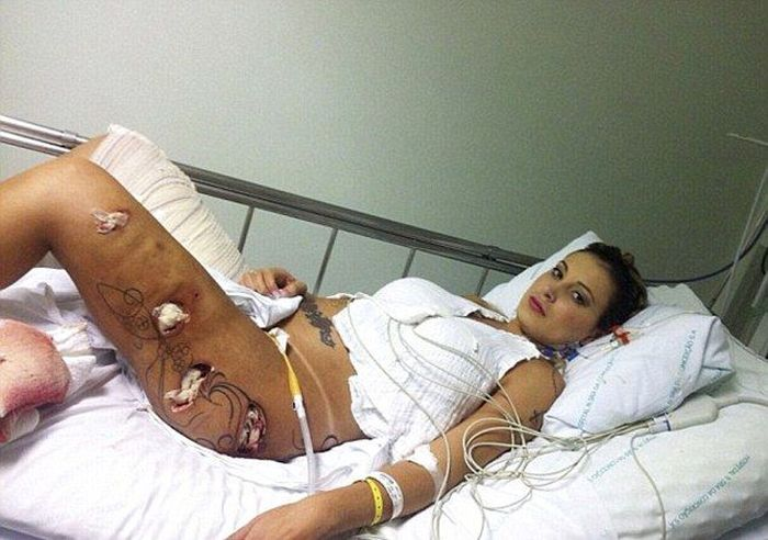 Miss Bumbum Andressa Urach Undergoes Surgery (9 pics)