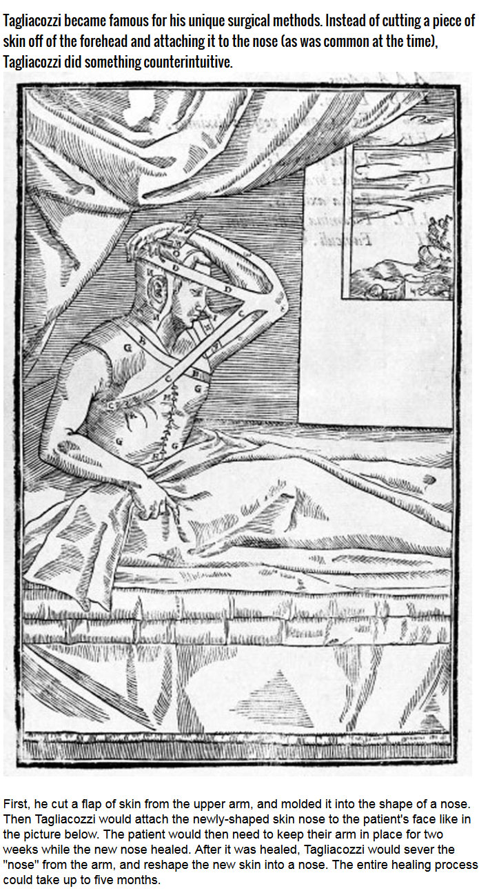 This Is How Surgeons Used To Perform Nose Jobs During The Renaissance (6 pics)