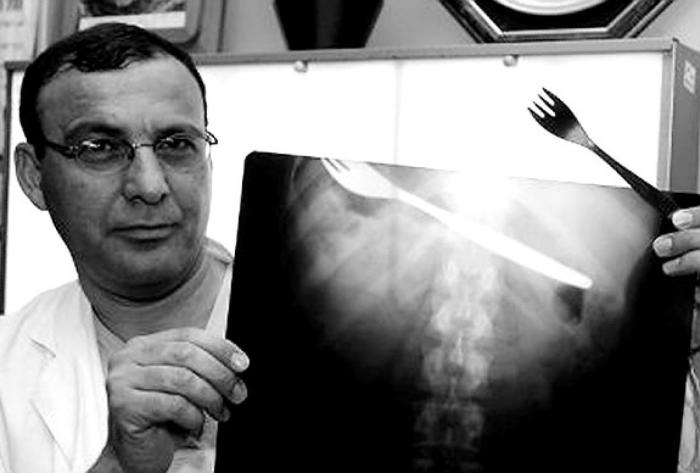 These Insane X-Rays Will Make You Wonder How That Got There (37 pics)