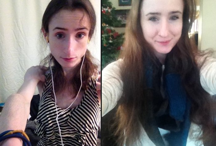 This Woman Is Looking Great After Recovering From An Eating Disorder (3 pics)