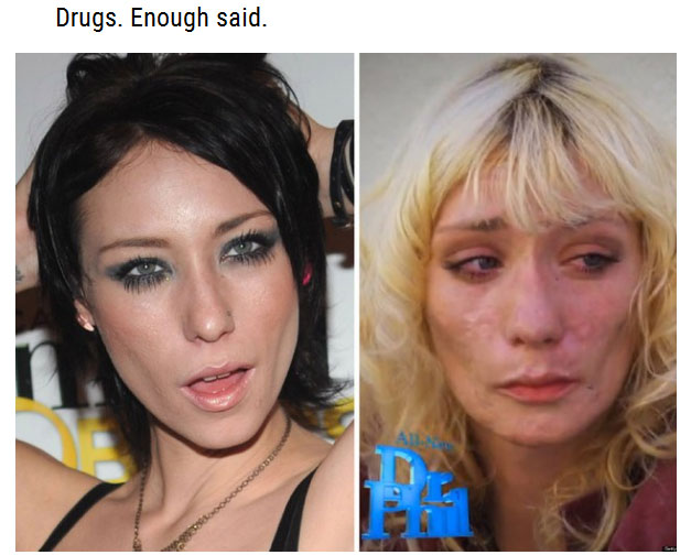 You Will Never Want To Do Drugs After Seeing These Photos (15 pics)