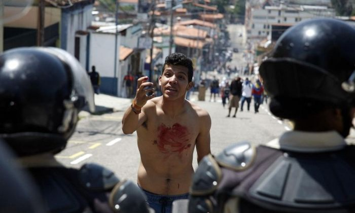A Venezuelan Teen Was Gunned Down During A Protest Now His Family Mourns (12 pics)