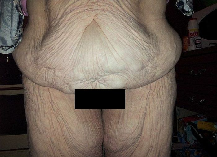 Woman Shows Off Her Body Before And After Skin Removal Surgery (4 pics)