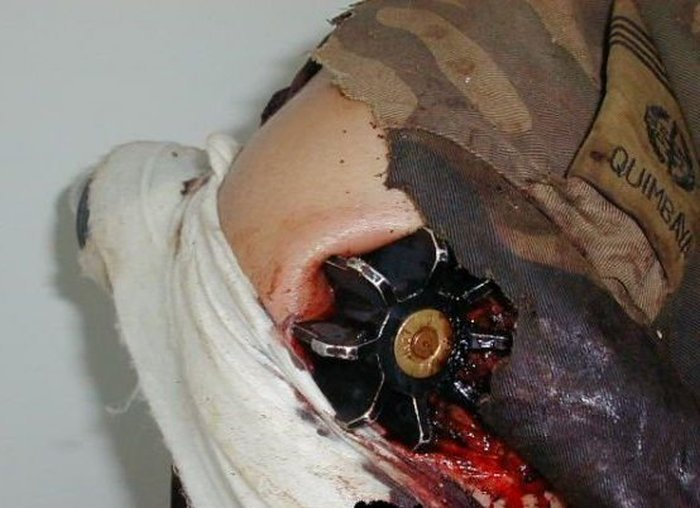 This Patient Is Explosive (3 pics)