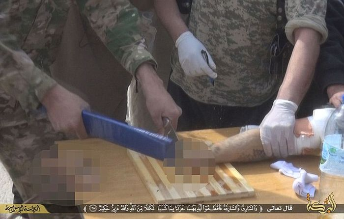 ISIS Amputates Hand Of A Motorbike Thief (8 pics)