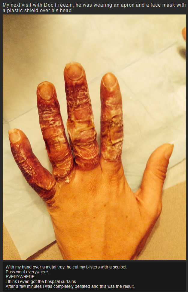 What Your Hands Look Like After They Get Frostbite (7 pics)