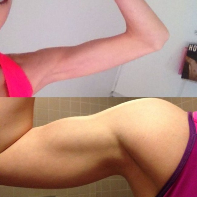 Exercise Is The Antidote For Anorexia (9 pics)