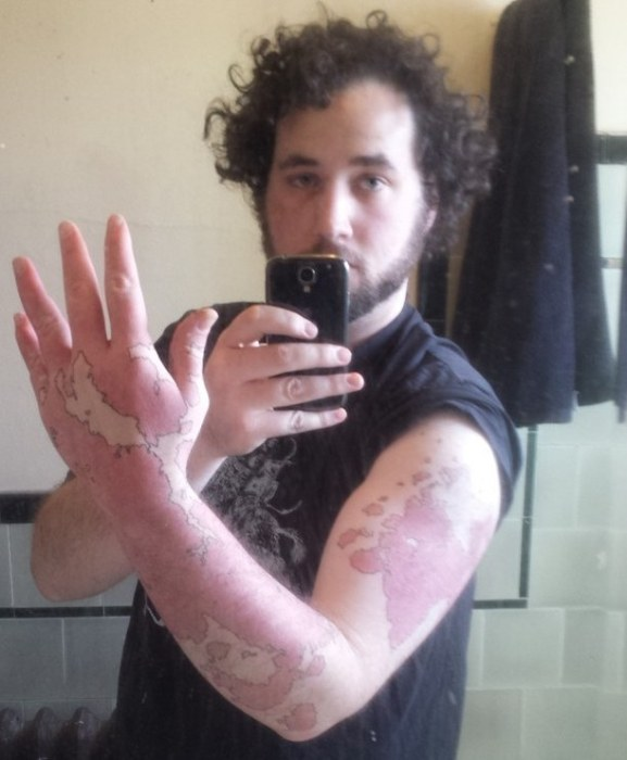Man Transforms His Birthmark Into A Map Of A New World (8 pics)