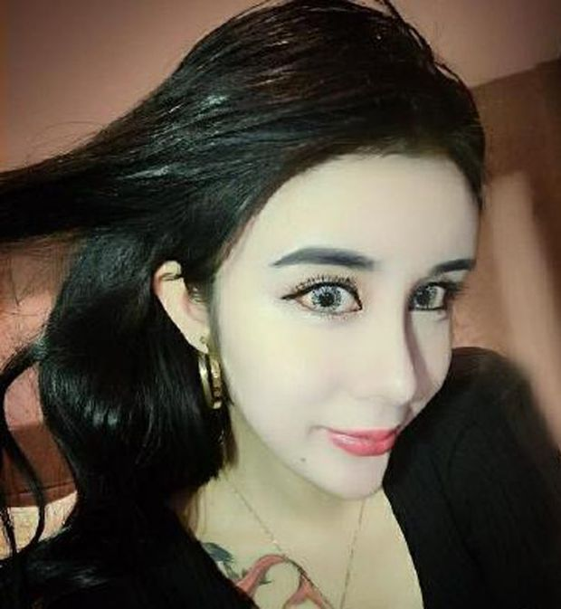 15 Year Old Girl Undergoes Controversial Plastic Surgery (11 pics)
