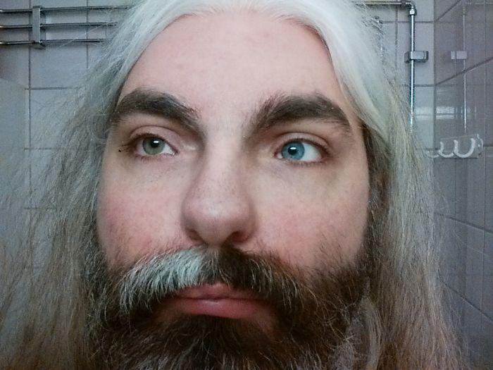 This Is What Complete Heterochromia Looks Like (2 pics)