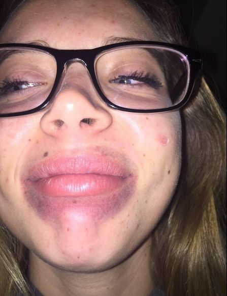 The Kylie Jenner Lip Challenge Has Turned Into A Complete Disaster (19 pics)