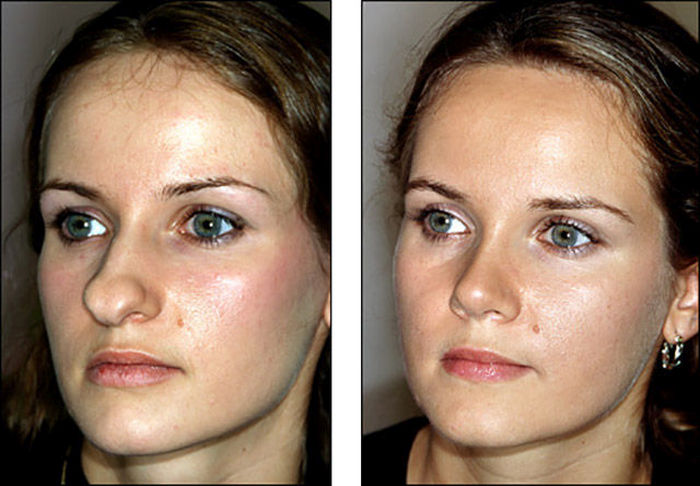 Before And After Pictures Show How A Nose Job Can Change Your Face (8 pics)
