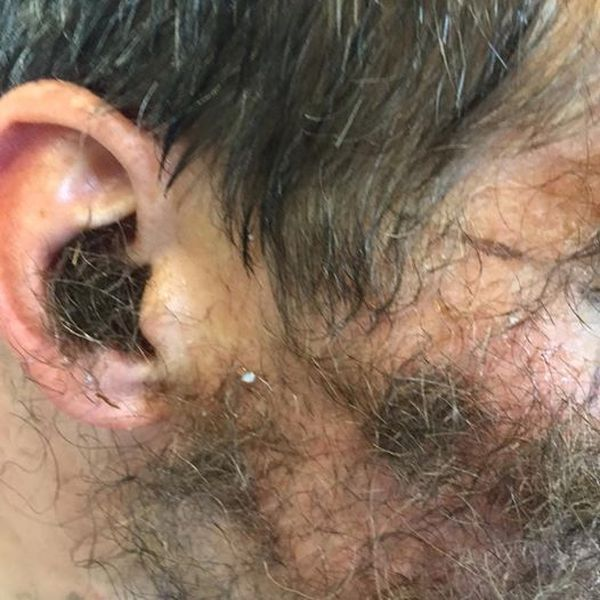 This Guy's Friends Glued Pubic Hair To His Face For His Bachelor Party (3 pics)