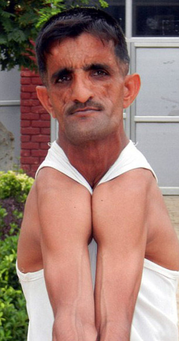 This Indian Man Holds A World Record Thanks To His Rubber Arms  (6 pics)
