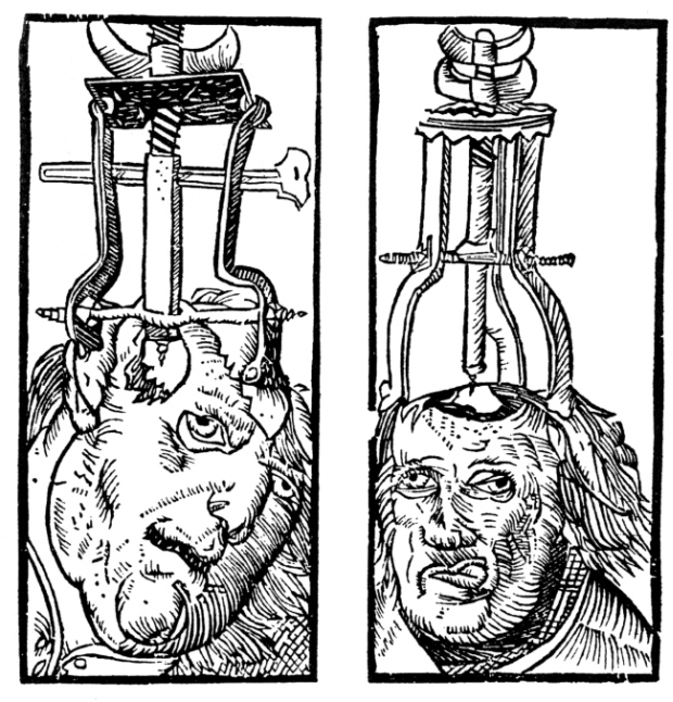 Bizarre Medical Devices That Were Used During Medieval Times (9 pics)