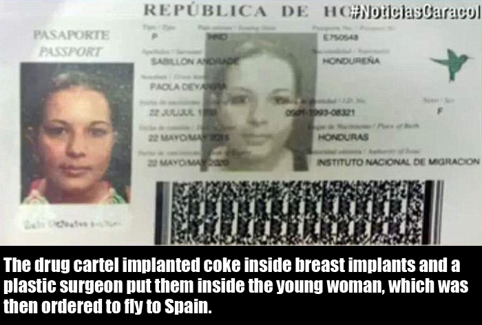 Woman Uses Her Breast Implants To Try And Smuggle Cocaine (5 pics)