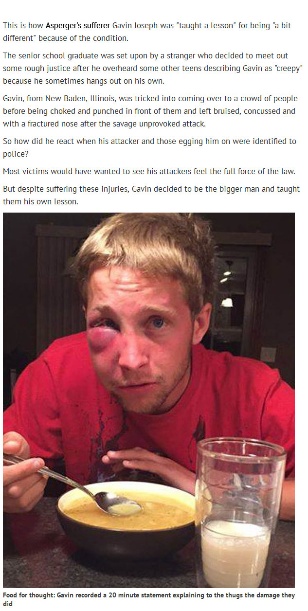 Kids Beat Up This Teen With Aspergers Find Out Why He Didn't Press Charges (4 pics)