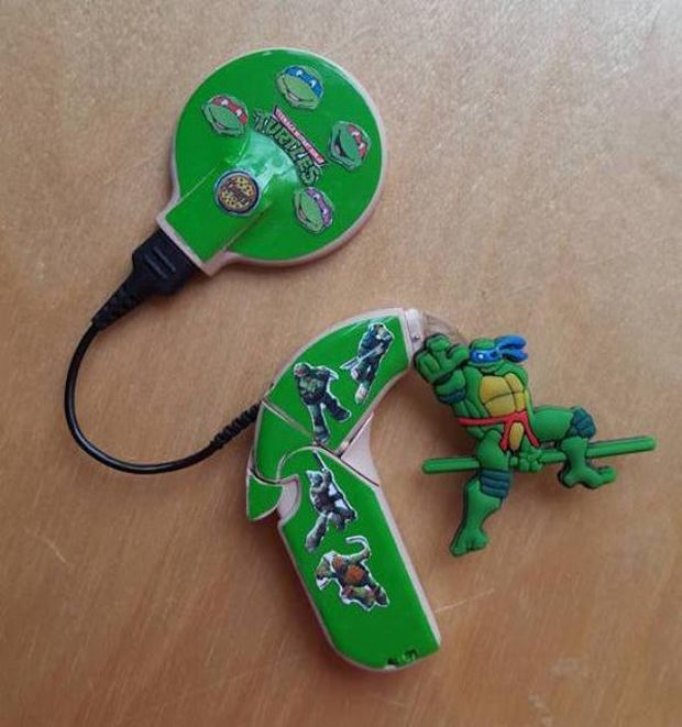 This Mom Created The Coolest Hearing Aids Ever For Her Hearing Impaired Son (8 pics)