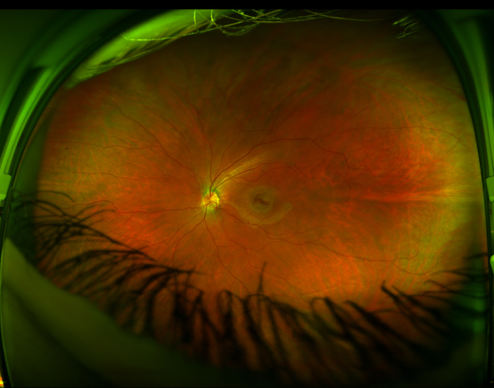This Is What The Back Of An Eyeball Looks Like