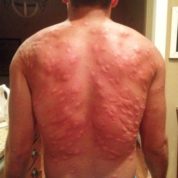 Man's Back Gets Destroyed By Mosquitos (2 pics)