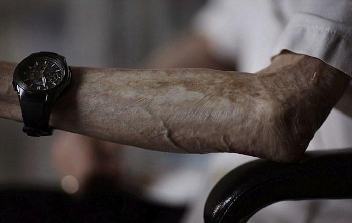 Nagasaki Bomb Survivor Shows Off The Scars Of Nuclear War (10 pics)