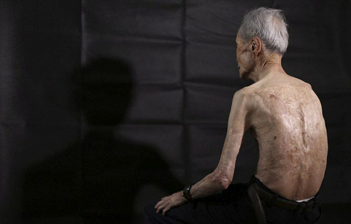 Nagasaki Bomb Survivor Shows Off The Scars Of Nuclear War (10 pics)