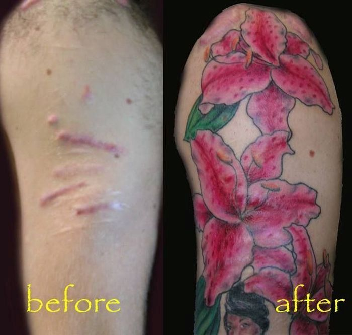 How To Hide Scars (15 pics)
