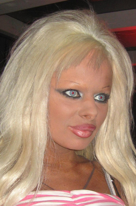 Plastic Surgery Gone Wrong (17 pics)