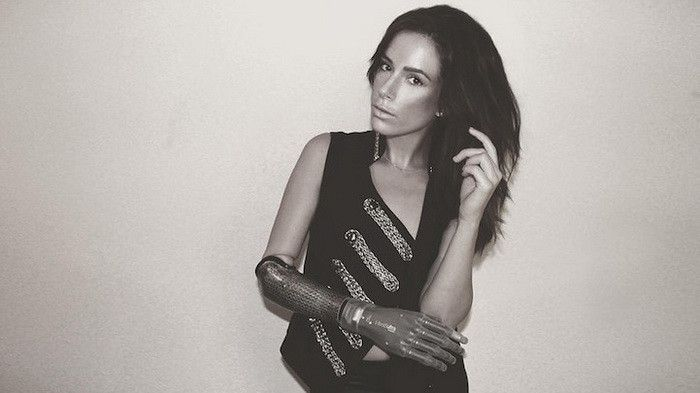 Meet The Beautiful Model With A Bionic Arm (12 pics)