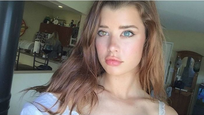 Meet Sarah Mcdaniel The Model With Two Different Colored -7790