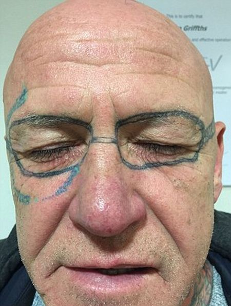 Man Wakes Up With A Pair Of Ray-Ban Sunglasses Tattooed On His Face (5 pics)