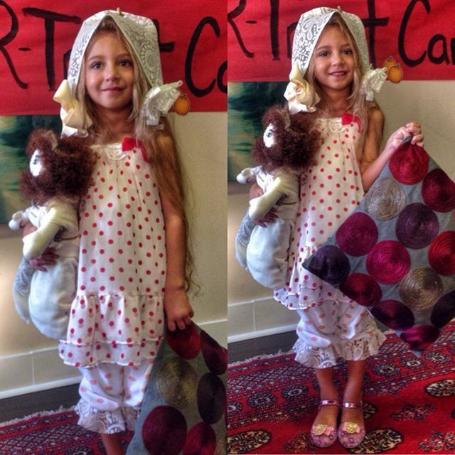 Six Year Old Girl Born With Her Heart Outside Of Her Chest Is Defying The Odds (8 pics)