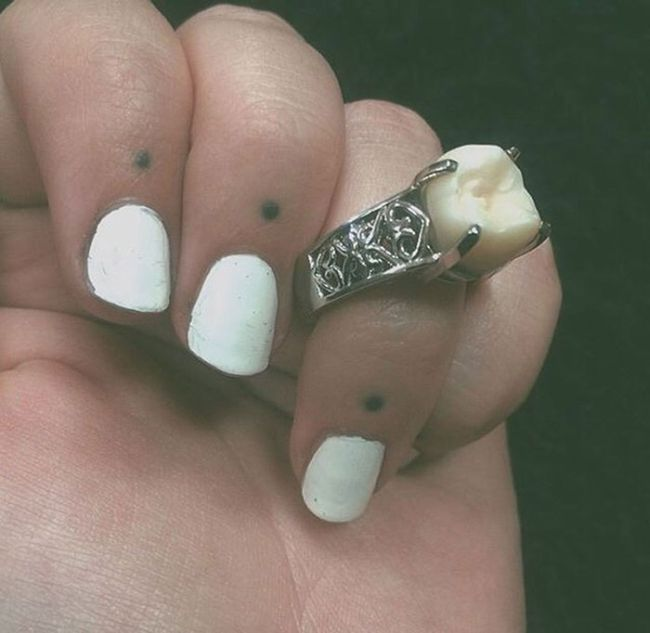 Instead Of A Diamond This Woman Got A Wisdom Tooth In Her Engagement Ring (5 pics)