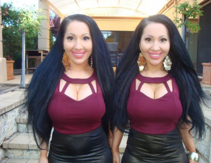 Twins Spend Over $190,000 To Become Australia's Most Identical Twins (10 pics)