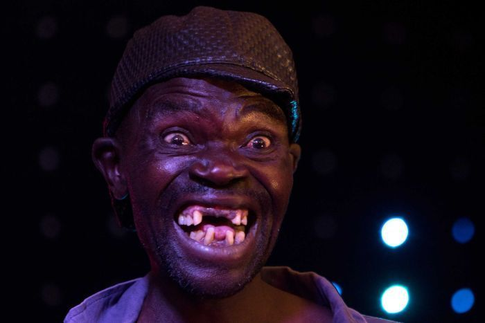 Meet The Winner Of The 2015 Mr. Ugly Competition (5 pics)