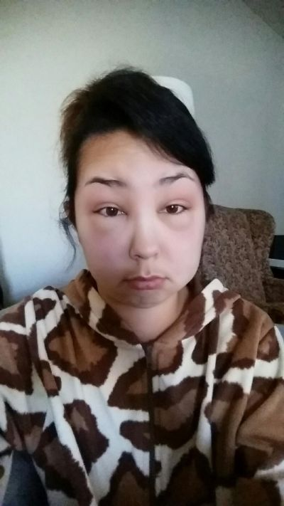 Girl Ends Up With A Swollen Face After Having A Bad Reaction To Hair Dye (8 pics)