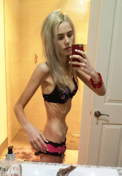 Teenage Girl Almost Dies After Giving Up Food And Water To Lose Weight (20 pics)