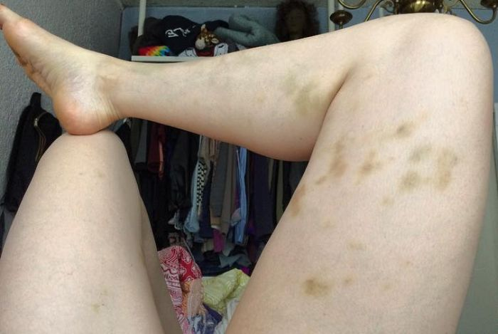 Comedian Posts Graphic Photo And Gets Serious About Abusive Relationships (4 pics)